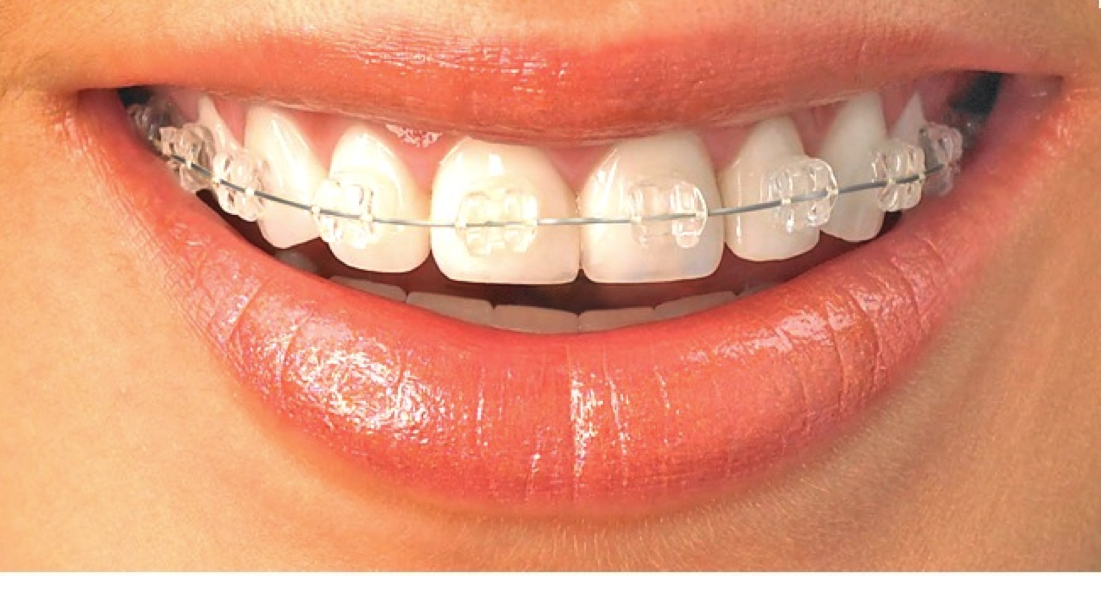 dental brackets