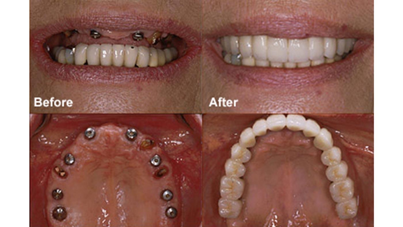 Meet Your Third Set of Teeth: The Dental Implants